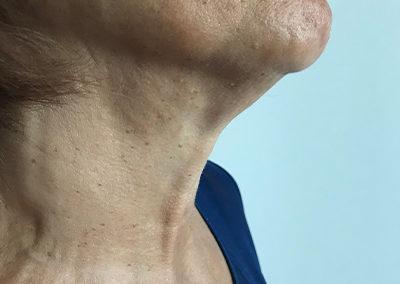 Après chirurgie : aucune cicatrice visible sur le cou
