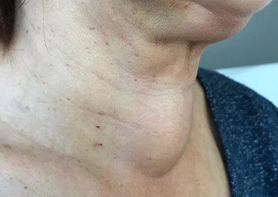 Goitre visible avant chirurgie vue de face