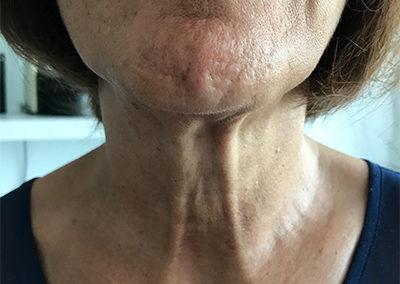 Après chirurgie TOETVA : aucune cicatrice visible de face
