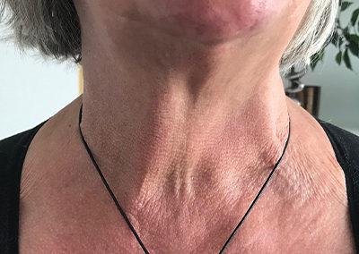 Après chirurgie : aucune cicatrice visible à la base du cou