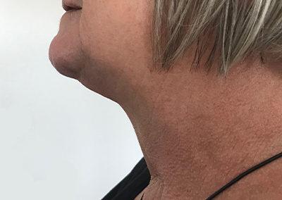 Après chirurgie TOETVA : aucune cicatrice