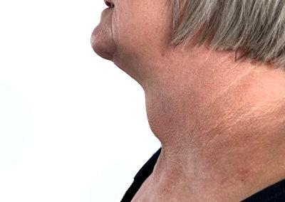 Goitre visible avant chirurgie, vue de profil