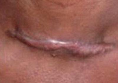 Cicatrice chéloïde après une chirurgie classique de la thyroïde